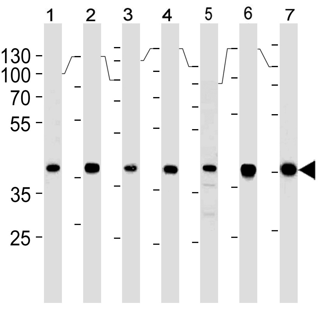 Mouse Monoclonal Antibody to Erk2 (Clone: 814CT5.4.2)(Discontinued)(Discontinued)