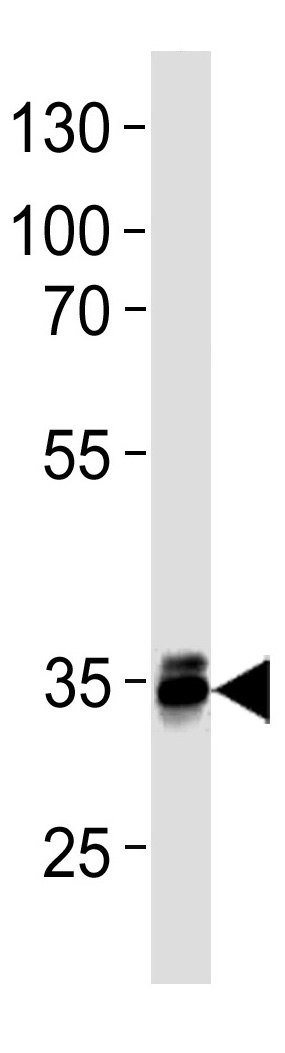 Mouse Monoclonal Antibody to MBD3  (C-term)(Clone: 995CT3.2.2)(Discontinued)