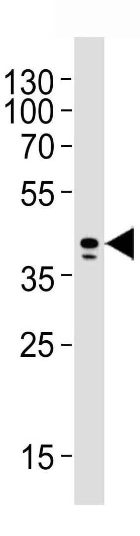 Mouse Monoclonal Antibody to AIM2 (Clone: 812CT9.2.2.1)(Discontinued)