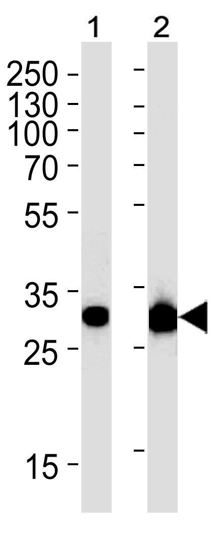 Mouse Monoclonal Antibody to CASP3 (Clone: 1262CT521.280.101)(Discontinued)