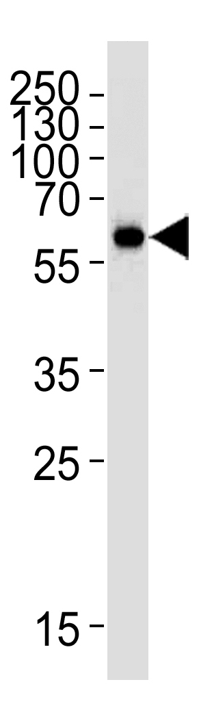 Mouse Monoclonal Antibody to HDAC2  (Center)(Clone: 1194CT18.5.1)(Discontinued)