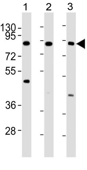 Mouse Monoclonal Antibody to IKK beta (Clone: 62AT216)(Discontinued)