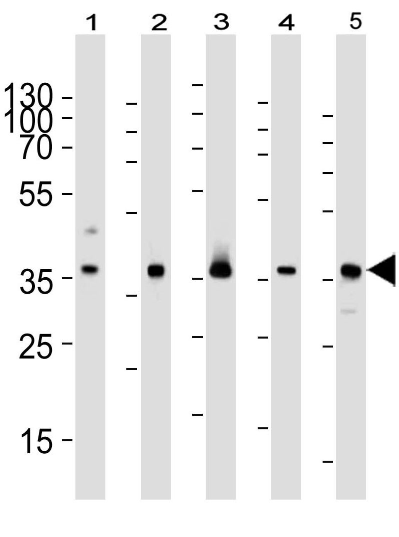Mouse Monoclonal Antibody to RAD51 (Clone: 1281CT886.273.179.159)(Discontinued)