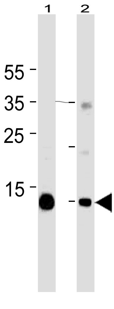 Mouse Monoclonal Antibody to Myoglobin  (C-term)(Clone: 773CT18.2.2)(Discontinued)