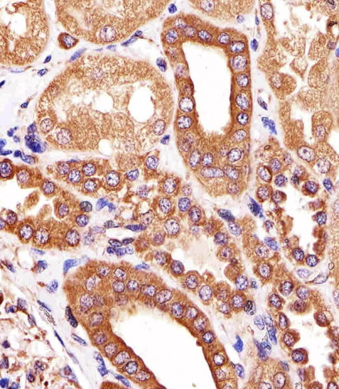 Mouse Monoclonal Antibody to ATG3 (Clone: 1377CT239.6.1.12)(Discontinued)