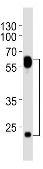 Mouse Monoclonal Antibody to FLT1 (Clone: 1453CT519.277.79)(Discontinued)
