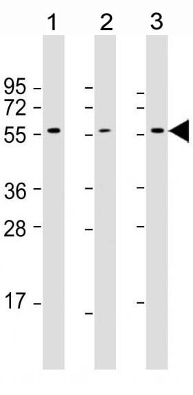 Mouse Monoclonal Antibody to AKT2 (Clone: 1623CT791.157.67.66)(Discontinued)
