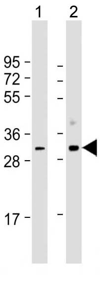 Mouse Monoclonal Antibody to CDK1 (Clone: 1644CT107.30.27)(Discontinued)