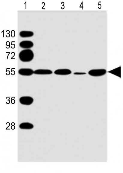 Mouse Monoclonal Antibody to P53 (Clone: 1711CT184.18.1)(Discontinued)