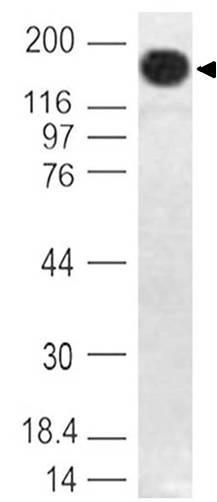Monoclonal Antibody to Dnmt1 (Clone: ABM13B2)