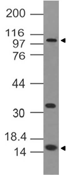 Monoclonal Antibody to DNMT3a (Clone: ABM13G4 )