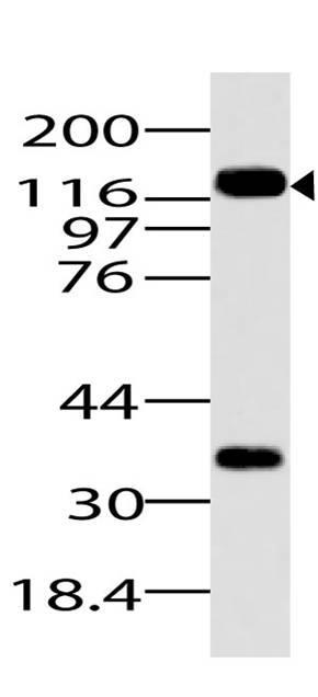 Monoclonal Antibody to DNMT3a (Clone: ABM1F35)