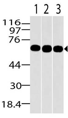 Monoclonal Antibody to MBD1 (Clone: ABM15H2)