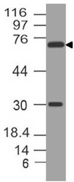 Monoclonal antibody to FOXM1 (Clone: ABM5F61)