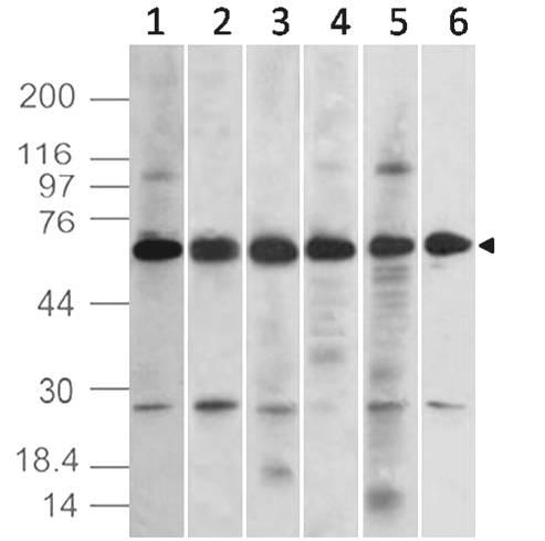 Monoclonal antibody to TEM7 (Clone: ABM1D82)