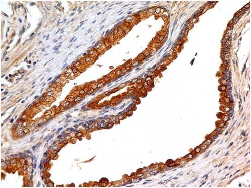 Monoclonal Antibody to EpCAM (CD326) Cytoplasmic Domain (Clone: ABM2C92)