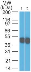 Monoclonal Antibody to CK18 (Clone: DC10)