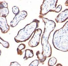 Monoclonal Antibody to HCG beta (Clone: 2C5)(Discontinued)