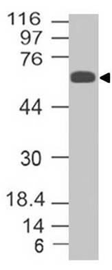 NALE™ Monoclonal Antibody to Trim29 (Clone: ABM43D2)