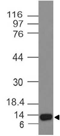 Monoclonal Antibody to ALK-1 (Clone: ABM43C4)
