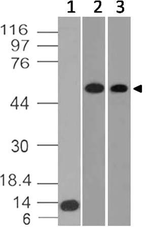 Monoclonal Antibody to Glut-1 (Clone: ABM4G40)
