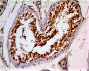 Monoclonal Antibody to IDH1 (Clone: ABM44B3)