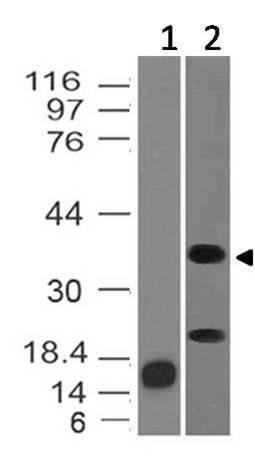 Monoclonal Antibody to Inhibin alpha (Clone: ABM44F5)