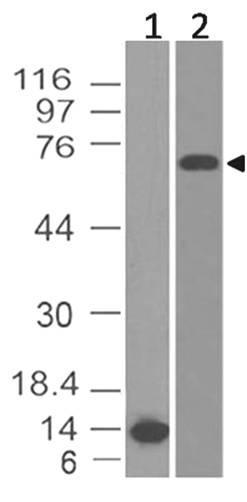 Monoclonal Antibody to BCL-6 (Clone: ABM44G9)