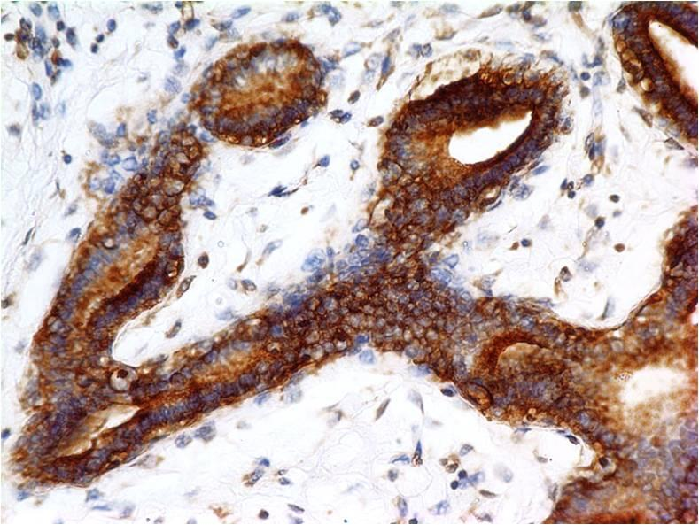 Monoclonal Antibody to c-erbB-2/Her2 (Clone: ABM45F5)