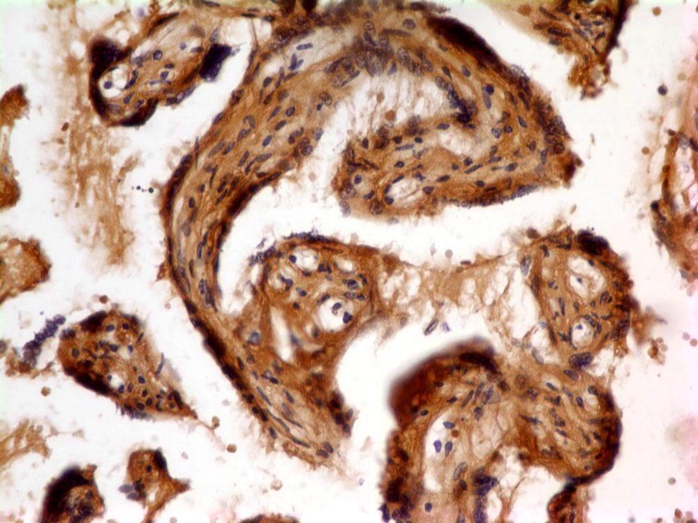 Monoclonal Antibody to FLT1 (Clone: ABM4A56)