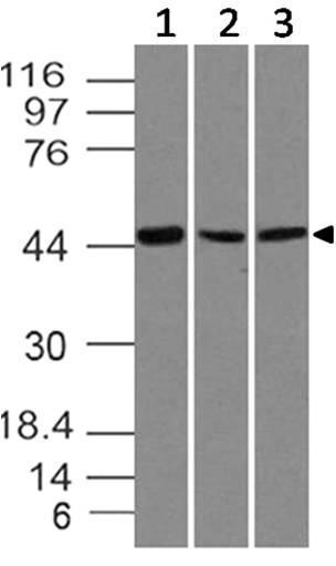 Monoclonal Antibody to SOX11 (Clone: ABM45D9)