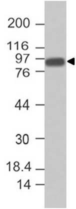 Monoclonal Antibody to Villin (Clone: ABM4E64)