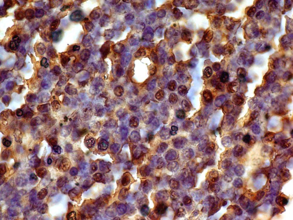 Monoclonal Antibody to Cyclin D1 (Clone: ABM47F5)