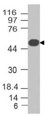Monoclonal antibody to Adipophilin (Clone: ABM4A83 )