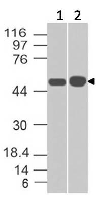 Monoclonal antibody to Antitrypsin (Clone: ABM48F6)