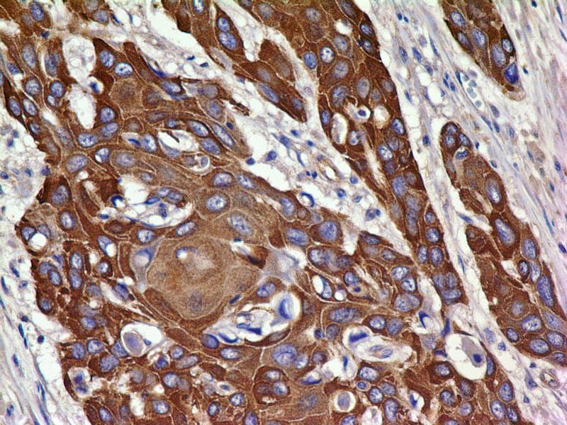 Monoclonal antibody to VEGFR-2 (Clone: ABM4A88)