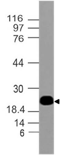 Monoclonal antibody to Troponin 1 (Clone: ABM49D9)