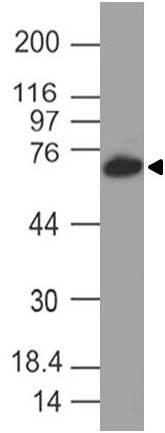 Monoclonal antibody to SLC34A1 (Clone: ABM5G13 )