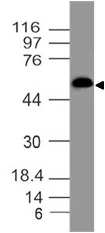 Monoclonal antibody to GluT1 (Clone: ABM51E4)