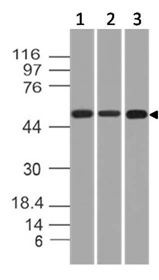Monoclonal antibody to KRT76 (Clone: ABM51A8)