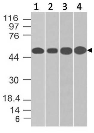 Monoclonal antibody to NSE Gamma (Clone: ABM5D20)