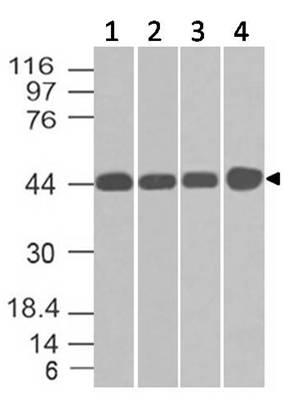 Monoclonal antibody to NDRG1 (Clone: ABM51C9 )