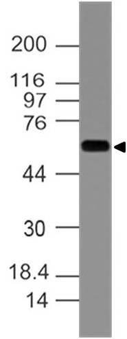 Monoclonal antibody to KRT77 (Clone: ABM5G22)
