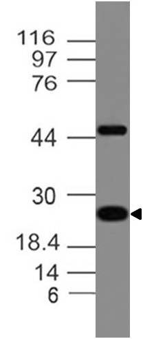 Monoclonal antibody to Adiponectin (Clone: ABM52A3 )