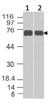 Monoclonal Antibody to MMP2 (Clone: ABM5A31)