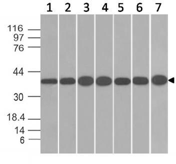 Monoclonal antibody to  Annexin I (Clone: ABM58D1)