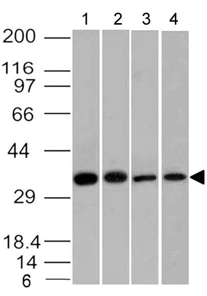 Rabbit Monoclonal Antibody to EpCAM (Clone: ABM53D8)