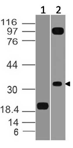 Monoclonal Antibody to VISTA (Clone: ABM1A1.1E7)