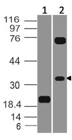 Monoclonal Antibody to VISTA (Clone: ABM1F9.1F6)