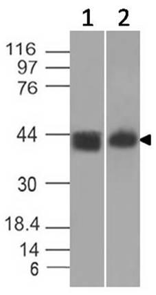 Monoclonal Antibody to Mouse CTLA4 (Clone: ABM5C62)